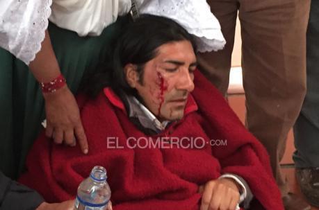 Yaku Pérez sustained injuries during his violent arrest.